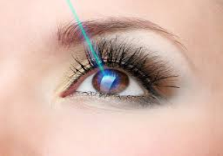 Laser eye surgery graphic image